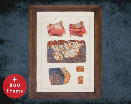 Anatomy art, NOSE NASAL MUCOUS, medical student gift, Otolaryngologist and ent, doctor office decor