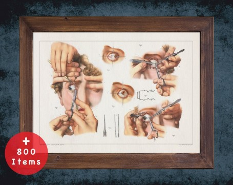 Anatomy art, STRABISMUS SURGERY ASTIGMATISM, medical student gift, Ophthalmologist and Optometry, doctor office decor