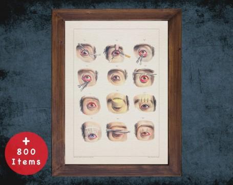 Anatomy art, EYE BLEPHAROPLASTY EYELID, medical student gift, Ophthalmologist and Optometry, doctor office decor