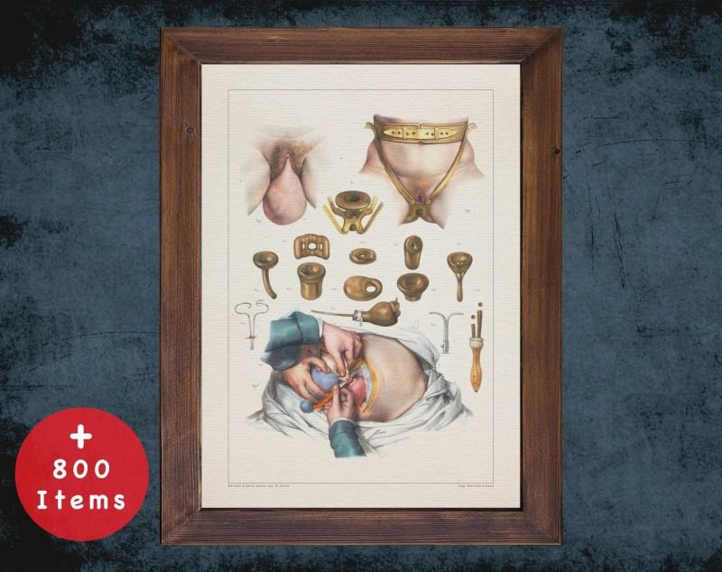 Anatomy art, ENDOMETRIOSIS UTERUS SURGERY, medical student gift, Urologist and Urology, doctor office decor