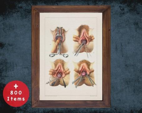 Anatomy art, POLYP VAGINA UTERUS, medical student gift, Urologist and Urology, doctor office decor