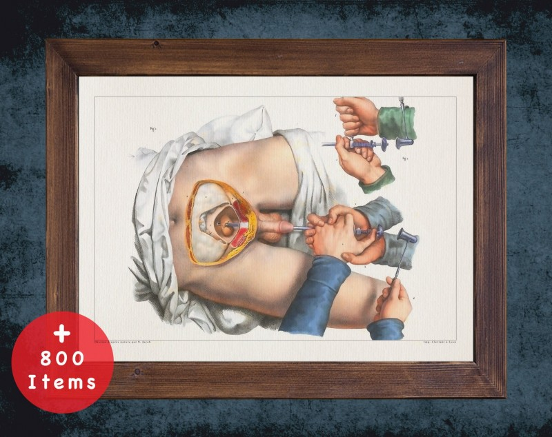Anatomy art, BLADDER STONE REMOVAL, medical student gift, Urologist and Urology, doctor office decor