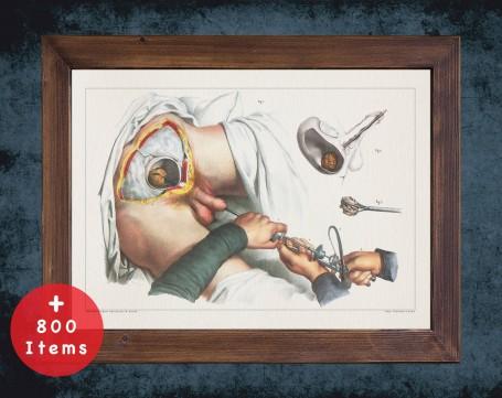 Anatomy art, BLADDER STONE SURGERY, medical student gift, Urologist and Urology, doctor office decor