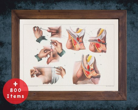 Anatomy art, URETHRA PROSTATE SURGERY, medical student gift, Urologist and Urology, doctor office decor