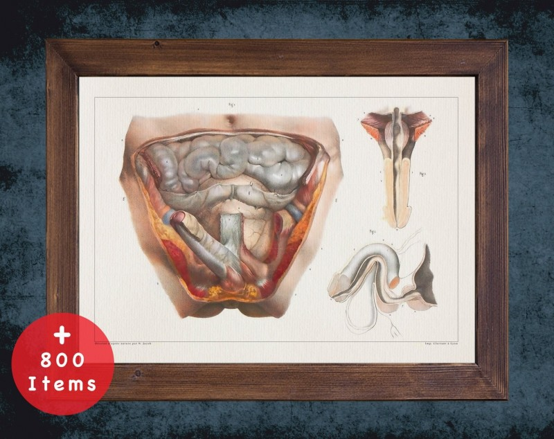 Anatomy art, URINARY SYSTEM MALE, medical student gift, Urologist and Urology, doctor office decor