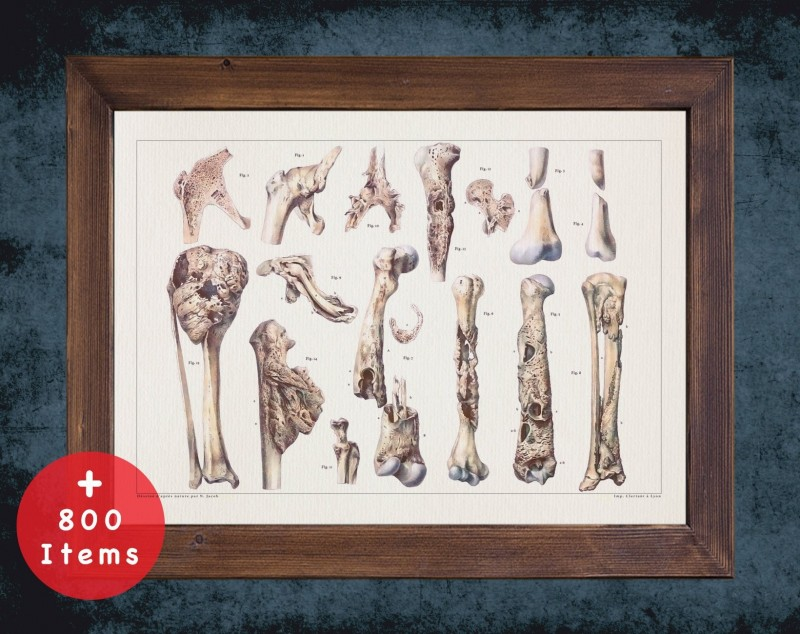 Anatomy art, BONES DISEASE SARCOMA, medical student gift, Rheumatologist and Rheumatology, doctor office decor