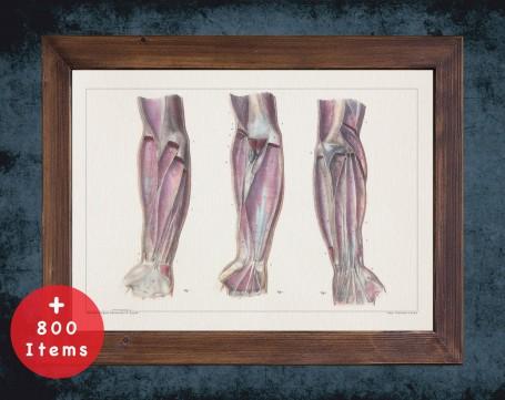 Anatomy art, ARM LIGAMENT HAND, medical student gift, Rheumatologist and Rheumatology, doctor office decor