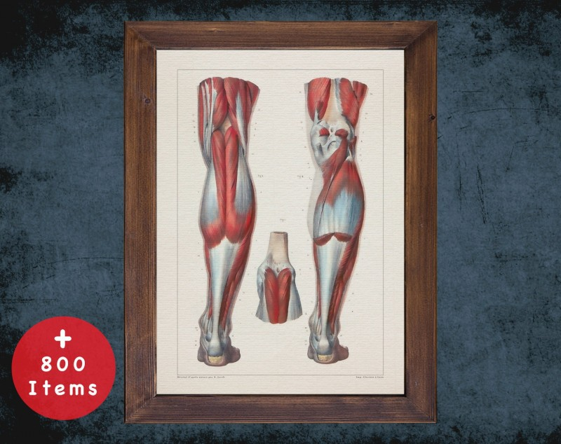 Anatomy art, KNEE ACHILLES HEEL, medical student gift, Rheumatologist and Rheumatology, doctor office decor