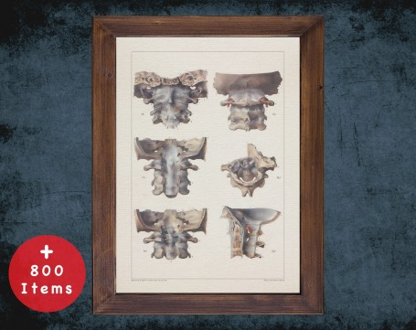 Anatomy art, VERTEBRA CERVICAL BONE, medical student gift, Chiropractor and Chiropractic, doctor office decor