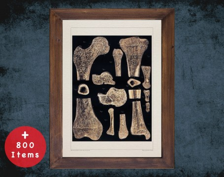 Anatomy art, BONE MARROW PERIOSTEUM, medical student gift, Radiologist and Radiology, doctor office decor