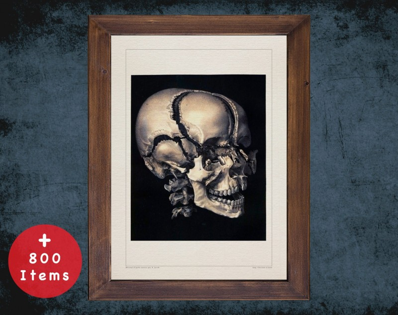 Anatomy art, SKULL PARTS BONES, medical student gift, Radiologist and Radiology, doctor office decor