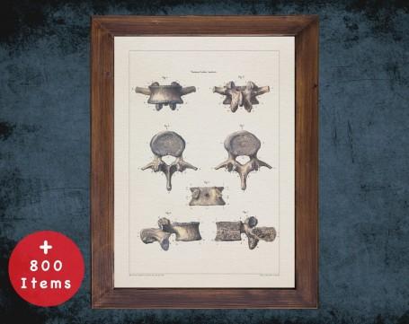 Anatomy art, BACKBONE VERTEBRA INTERVERTEBRAL, medical student gift, Radiologist and Radiology, doctor office decor