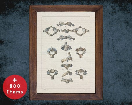 Anatomy art, VERTEBRA SPINAL COLUMN, medical student gift, Radiologist and Radiology, doctor office decor