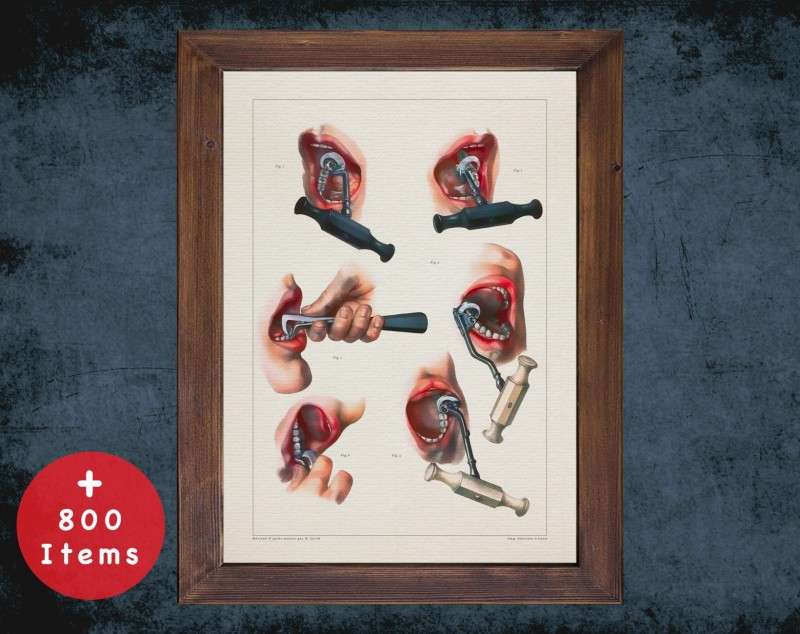 Anatomy art, TOOLS TOOTH EXTRACTION, medical student gift, Dentist and Dentistry, doctor office decor
