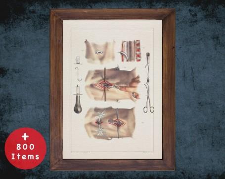Anatomy art, LARYNX TRACHEOTOMY SURGERY, medical student gift, Plastic Surgeon and Plastic Surgery, doctor office decor