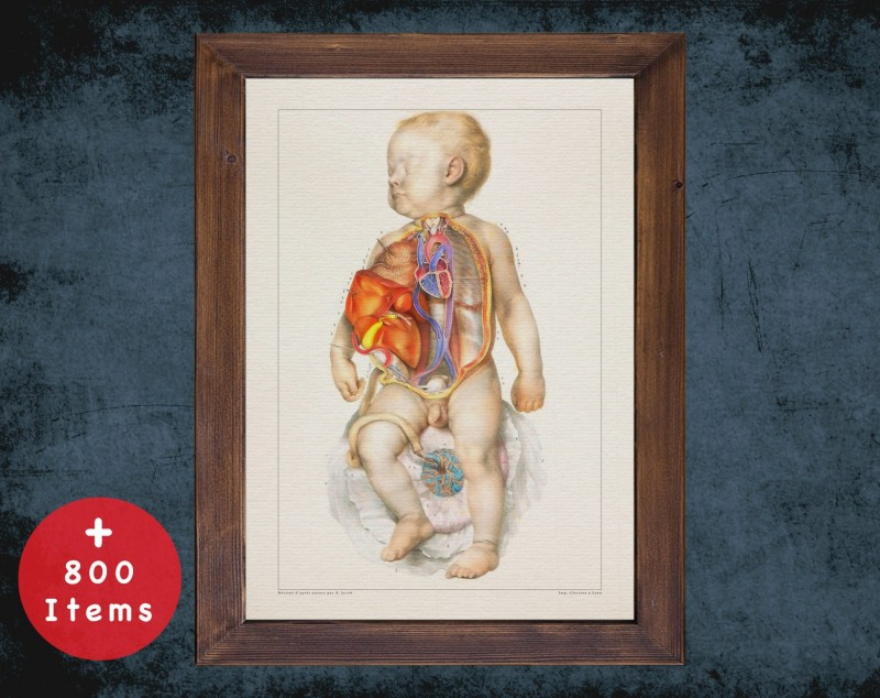 Anatomy art, BABY DISSECTION PLACENTA, medical student gift, Obstetrician and Obstetrics, doctor office decor