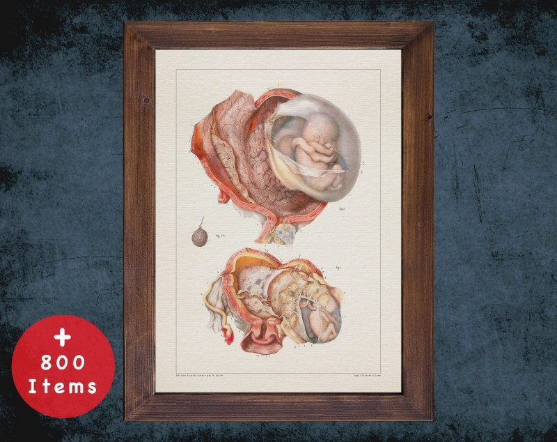 Anatomy art, AMNIOTIC UTERUS FETUS, medical student gift, Obstetrician and Obstetrics, doctor office decor