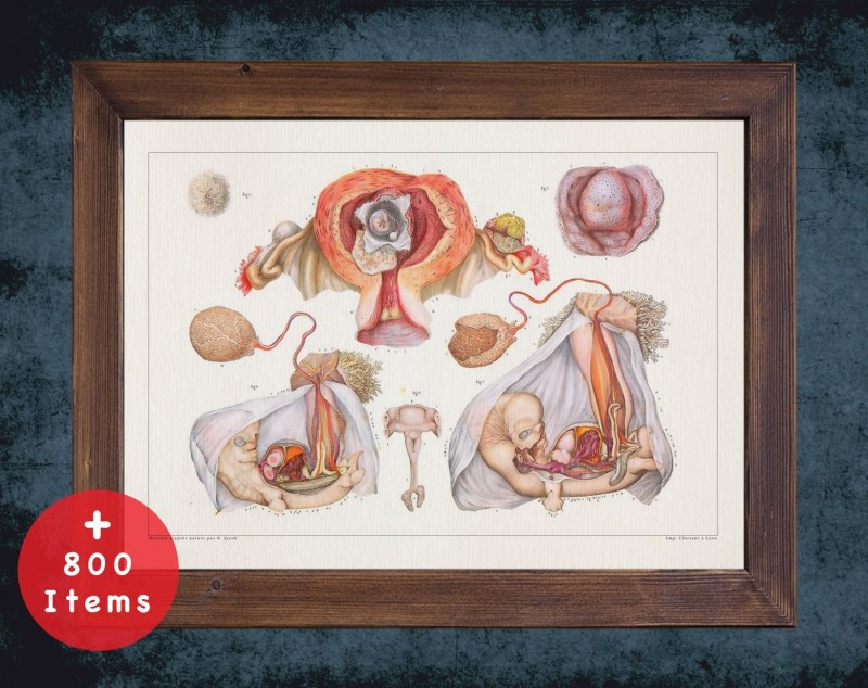 Anatomy art, UTERUS CERVIX FETUS, medical student gift, Obstetrician and Obstetrics, doctor office decor