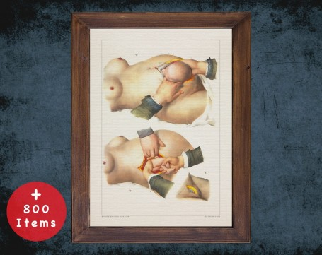 Anatomy art, CHILDBIRTH CAESAREAN BREECH-Birth, medical student gift, Obstetrician and Obstetrics, doctor office decor