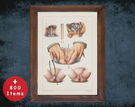 Anatomy art, ANAL SCROTUM RECTUM, medical student gift, Colorectal and surgery, doctor office decor