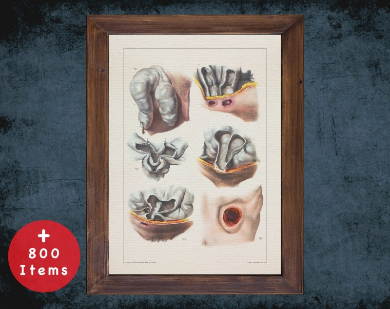 Anatomy art, ARTIFICIAL ANUS OPERATIVE, medical student gift, Colorectal and surgery, doctor office decor