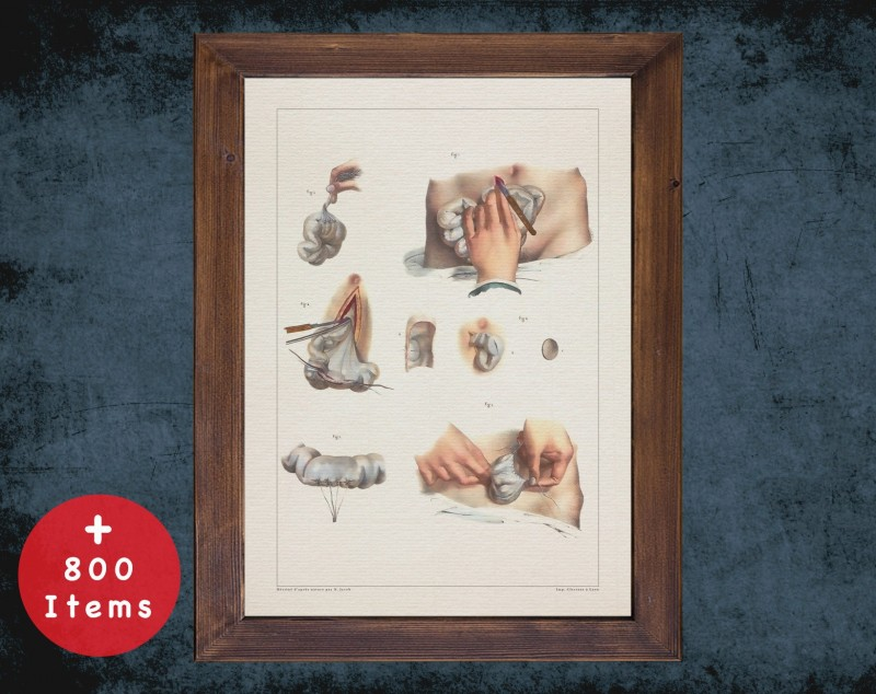 Anatomy art, INTESTINE BOWEL OBSTRUCTION, medical student gift, Colorectal and surgery, doctor office decor