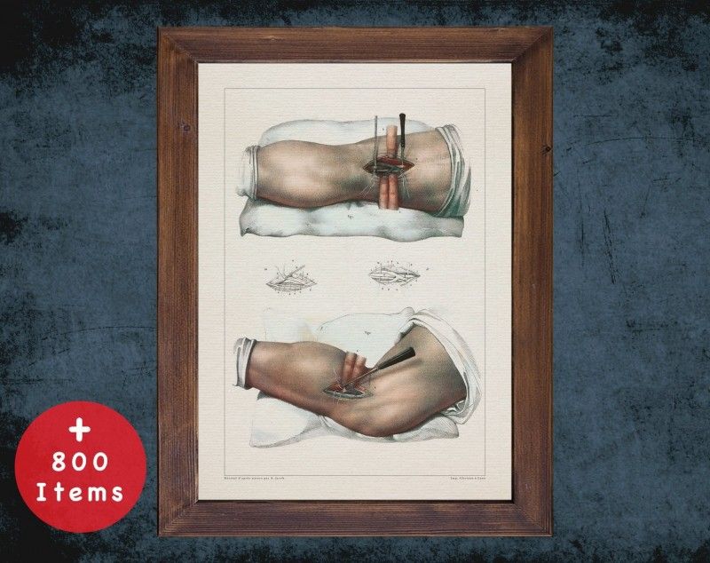 Anatomy art, POPLITEAL ARTERY LIGATURE, medical student gift, Vessel blood and Vascular surgery, doctor office decor