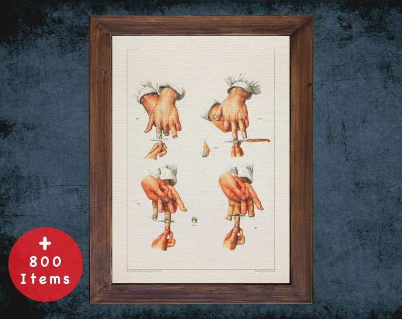 Anatomy art, FINGER HAND CUT, medical student gift, hand and surgery, doctor office decor