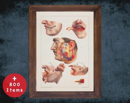 Anatomy art, SALIVARY GLAND FISTULA, medical student gift, Plastic Surgeon and Plastic Surgery, doctor office decor