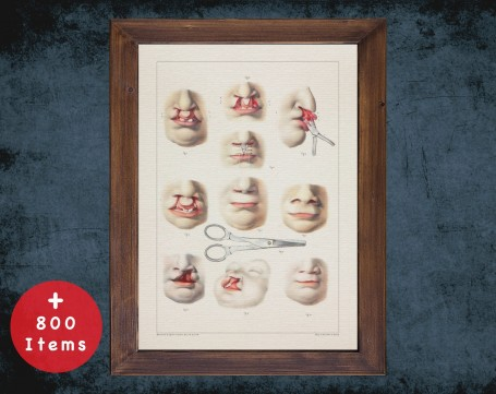 Anatomy art, CLEFT LIP PALATE, medical student gift, Plastic Surgeon and Plastic Surgery, doctor office decor