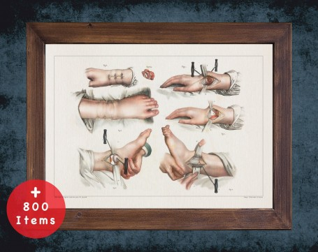 Anatomy art, FOOT SURGERY ACHILES, medical student gift, Podiatrist and Podiatry, doctor office decor