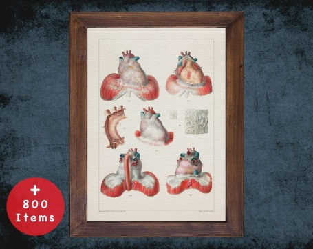 Anatomy art, heart infarction myocardial , medical student gift, cardiologist and cardiology, doctor office decor