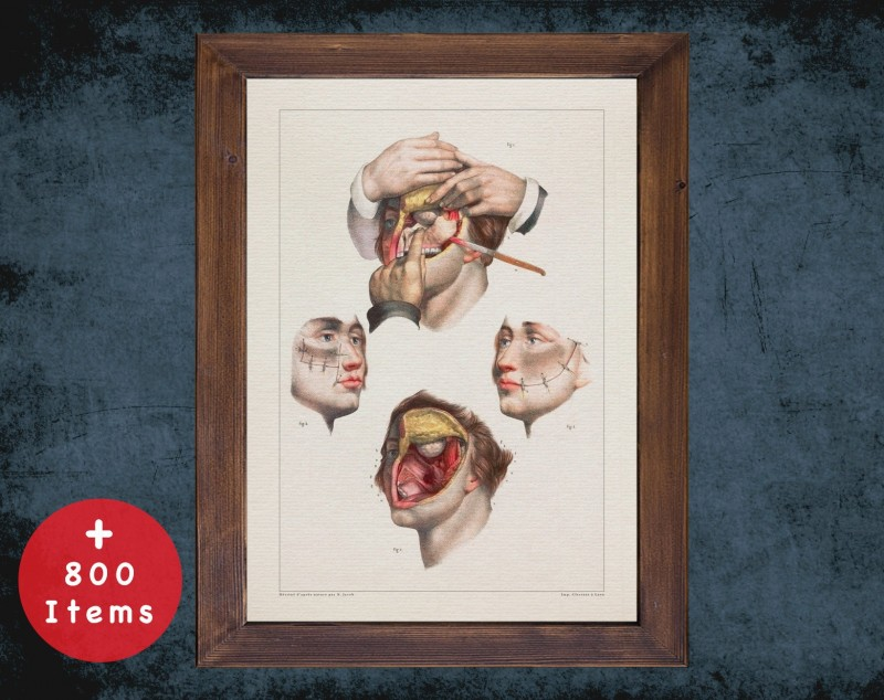Anatomy art, ABLATION UPPER MANDIBLE, medical student gift, Plastic Surgeon and Plastic Surgery, doctor office decor