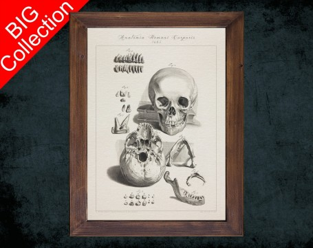 Human Anatomy, medical student gift,, doctor office decor, TOOTH DECAY MANDIBLE anatomical poster