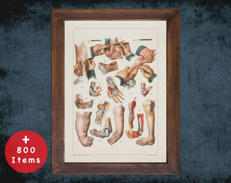 Anatomy art, HUMAN CLUBFOOT HAND, medical student gift, Orthopedist and Orthopedic, doctor office decor