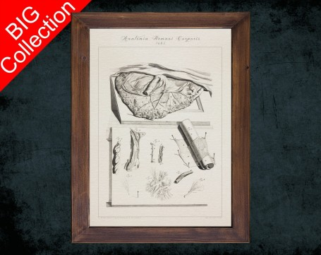 Human Anatomy, medical student gift,, doctor office decor, PLACENTA ARTERY VEIN anatomical poster
