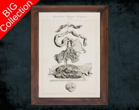 Human Anatomy, medical student gift,, doctor office decor, UMBILICAL VEIN ARTERY anatomical poster