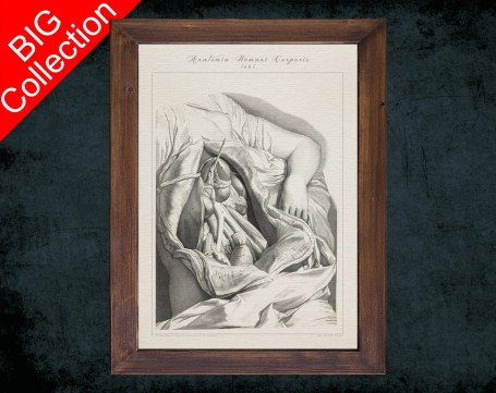 Human Anatomy, medical student gift,, doctor office decor, WOMEN DISSECTION BELLY anatomical poster