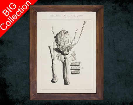 Human Anatomy, medical student gift,, doctor office decor, BLADDER PROSTATE PENIS anatomical poster