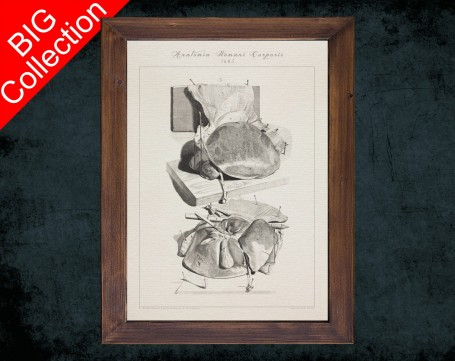 Human Anatomy, medical student gift,, doctor office decor, LIVER LOBE HEPATOCYTE anatomical poster