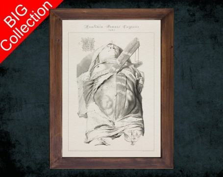 Human Anatomy, medical student gift,, doctor office decor, BELLY BUTTON SKINNED anatomical poster