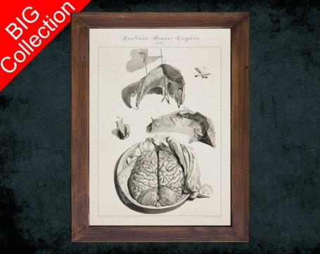 Human Anatomy, medical student gift,, doctor office decor, MENINGES BRAIN DISSECTION anatomical poster