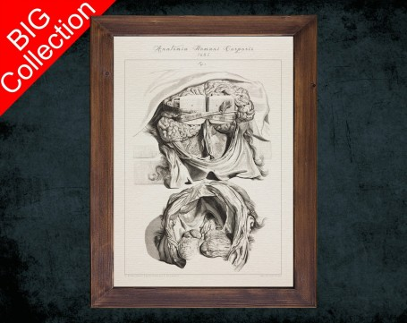 Human Anatomy, medical student gift,, doctor office decor, BRAIN SKULL DISSECTION anatomical poster