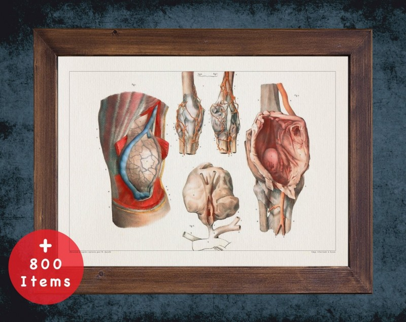 Anatomy art, ANEURYSM KNEE LEG, medical student gift, Vessel blood and Vascular surgery, doctor office decor