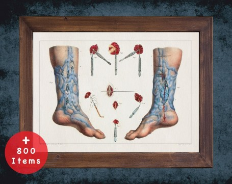 Anatomy art, VARICOSE VEINS FOOT, medical student gift, Vessel blood and Vascular surgery, doctor office decor