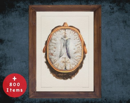 Anatomy art, BRAIN DURA MATER, medical student gift, Neurologist and Neurology, doctor office decor