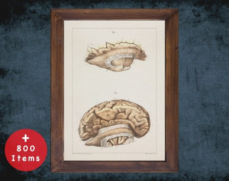 Anatomy art, BRAIN CORPUS CALLOSUM, medical student gift, neuroscience and Neurosurgery, doctor office decor