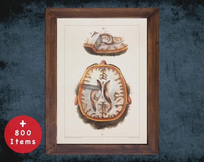 Anatomy art, HEAD BRAIN SKULL, medical student gift, neuroscience and Neurosurgery, doctor office decor