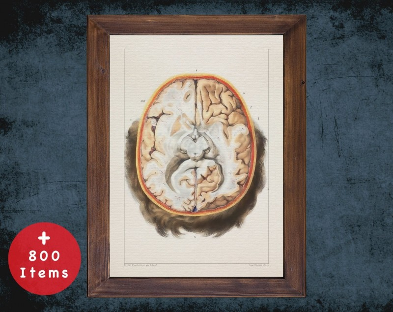 Anatomy art, BRAIN LOBES CUT, medical student gift, neuroscience and Neurosurgery, doctor office decor