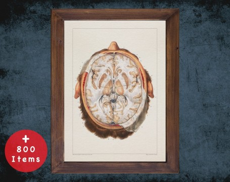 Anatomy art, BRAIN HORIZONTAL VIEW, medical student gift, neuroscience and Neurosurgery, doctor office decor